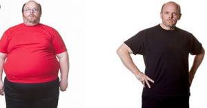 انواع جراحی کاهش وزن
