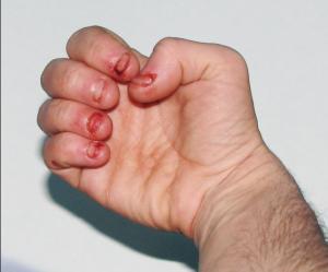عوارض جویدن ناخن در کودکان