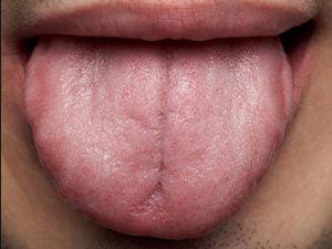 کاهش حس بویایی و چشایی
