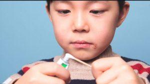 تشخیص تبخال دهانی