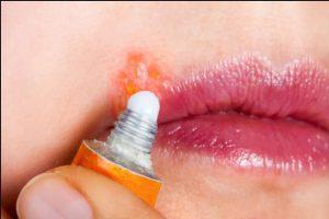 درمان تبخال دهانی