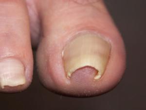 پا درد و مشکلات مربوط به ناخن پا