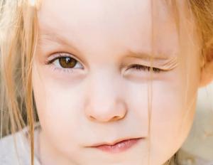 آستیگماتیسم در کودکان