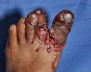 جراحی و درمان له شدگی پا
