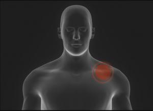 درد شانه و بازوی راست و راههای کنترل و درمان آن