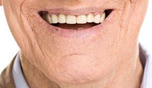 بهبود خشکی دهان