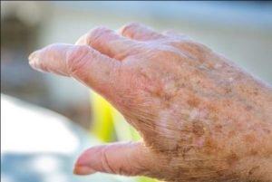 تشخیص خشکی پوست سالمند