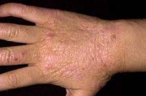 علایم خشکی پوست سالمند
