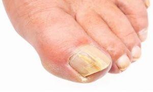 درمان عفونت پوستی قارچ کاندیدا