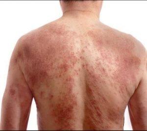 علایم آلرژی به نیکوتین