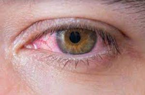 خشکی چشم و یوگا