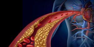 علایم آنژین صدری