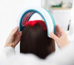 ریزش مو و لیزر درمانی