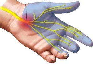 سندرم درد دست تونل کارپ